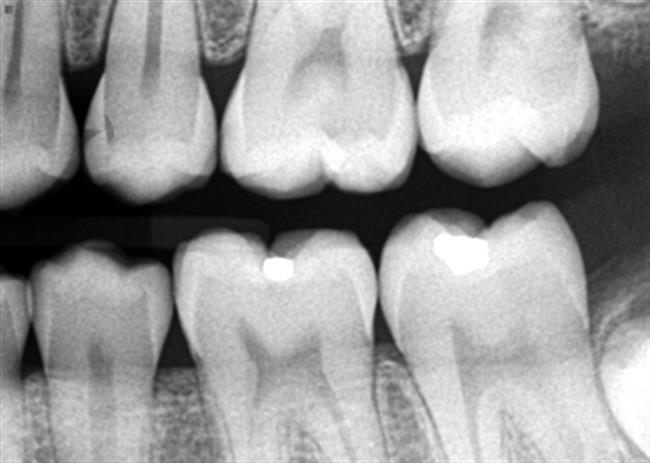dental-x-ray-2