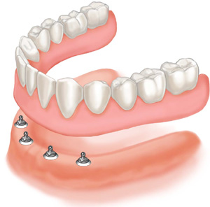 denture-implants
